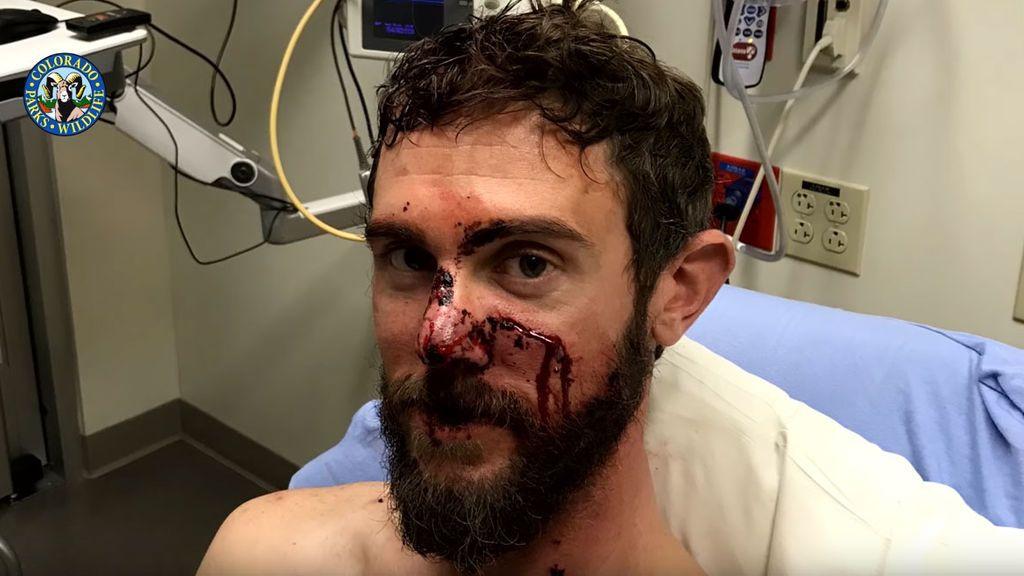El montañero que tuvo que matar a un puma con sus propias manos para sobrevivir