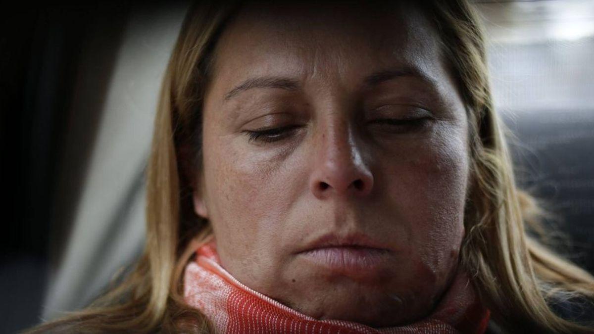 La historia de Karina Abregú, la mujer que se ha tenido que someter a más de 50 operaciones por maltrato