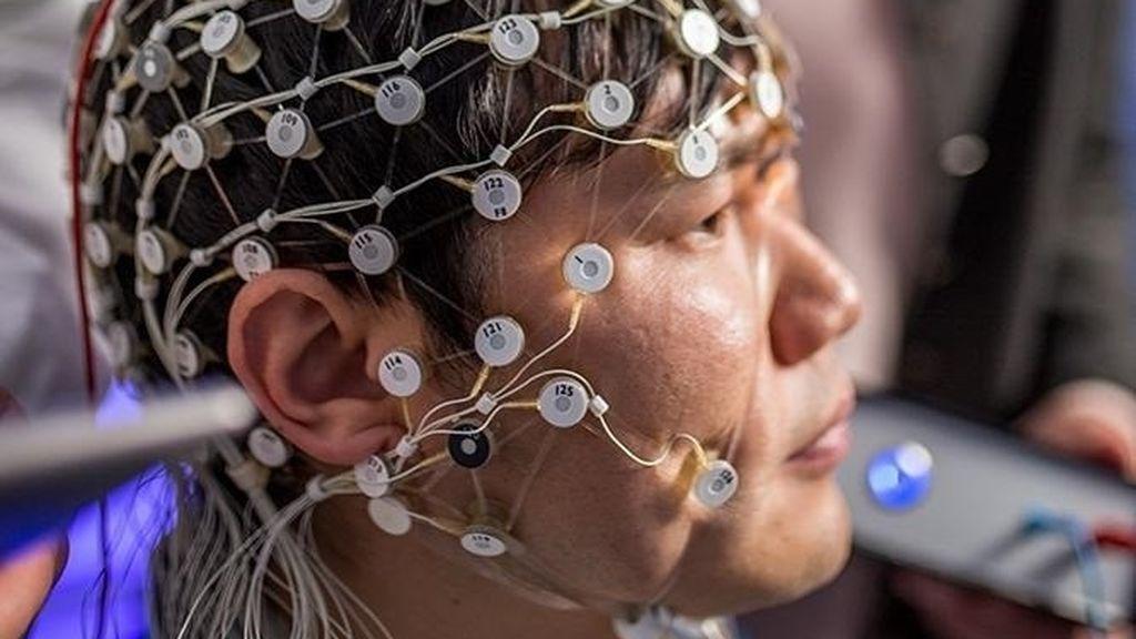 La estimulación cerebral podría reducir los síntomas de la depresión