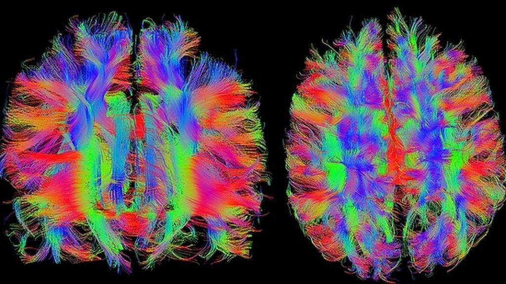 Arte con ciencia: un profesor crea arte con imágenes del cerebro
