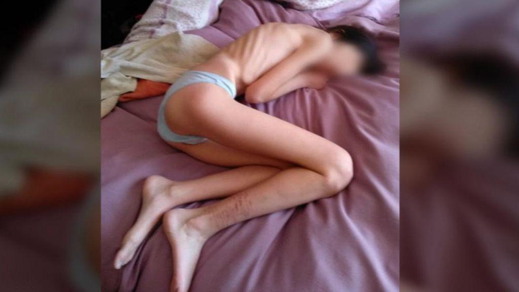 Una madre de Granada denuncia la falta de recursos públicos para tratar a su hija, enferma de anorexia