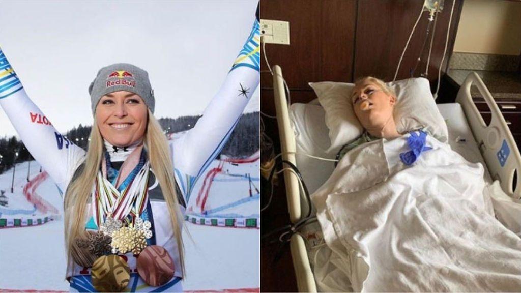 Imágenes extremadamente sensibles: Lindsey Vonn, esquiadora olímpica, publica imágenes de su operación de rodilla