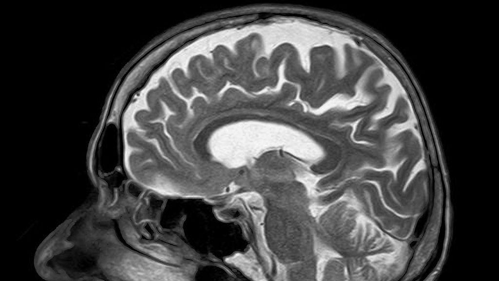 Unos hackers manipulan resonancias magnéticas y crean tumores