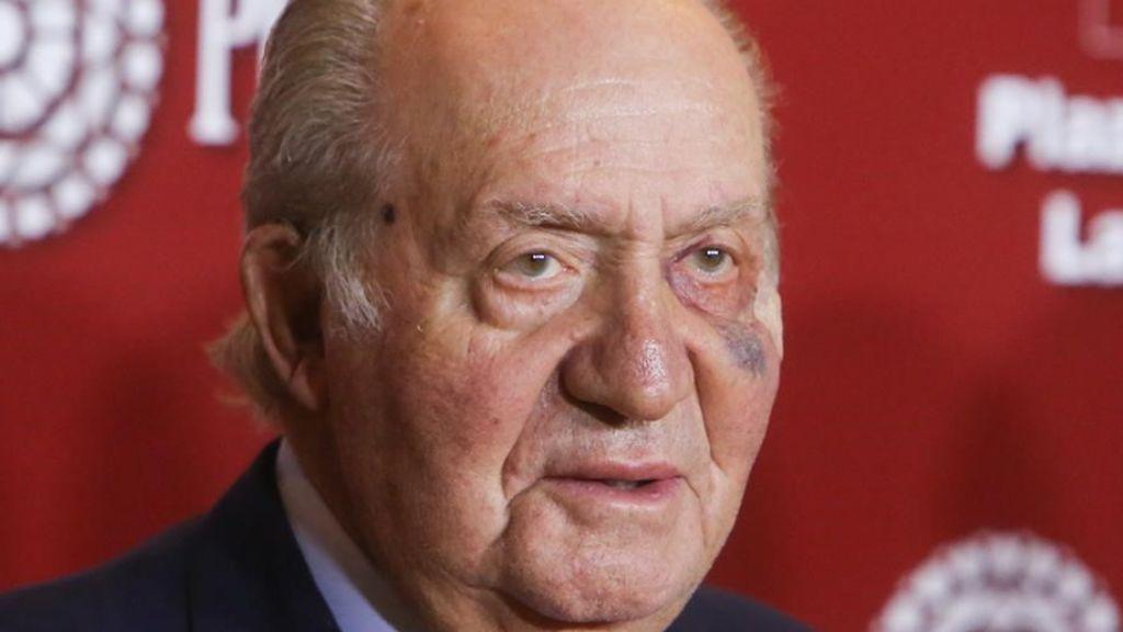 Nueva operación del Rey Juan Carlos: le extirpan una lesión cutánea consecuencia de su exposición al sol