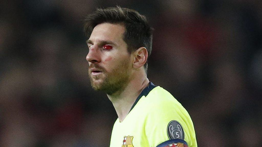 Messi herida