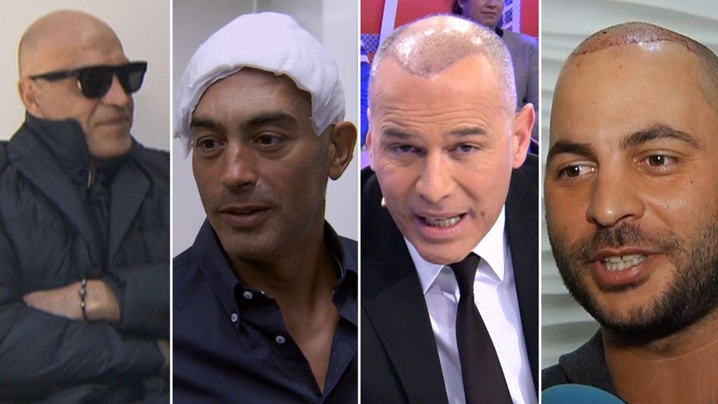 Otros famosos que lucieron con orgullo su injerto capilar