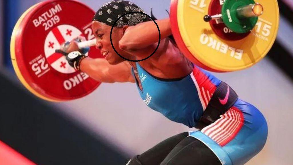 Una atleta sufre una terrible fractura de brazo cuando intentaba levantar 107 kilos