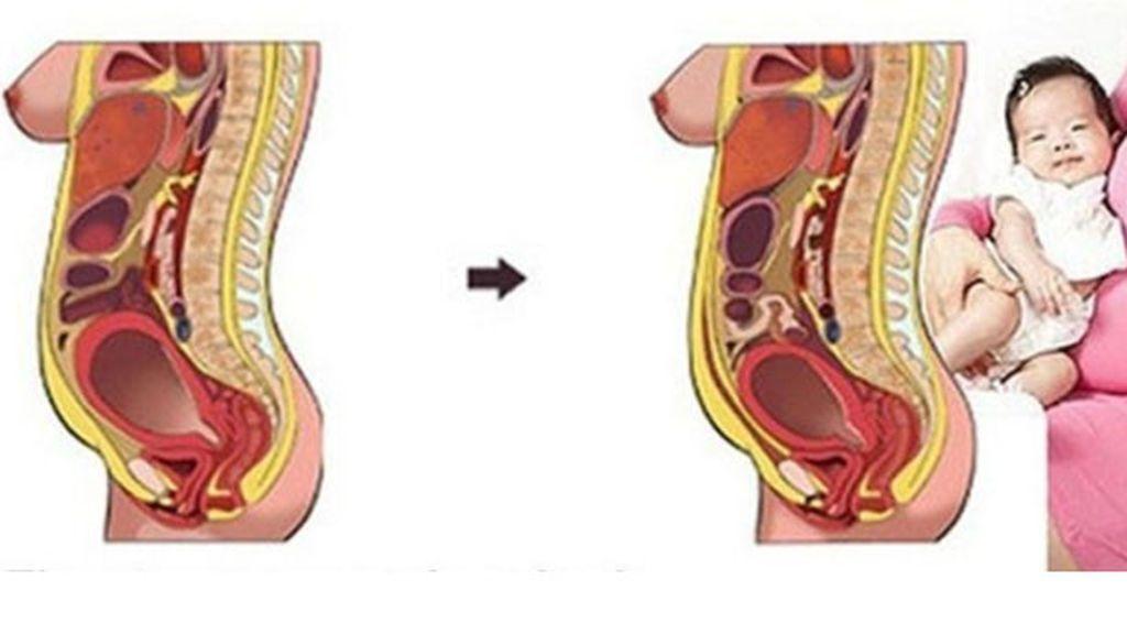 Todo lo que no te han contado del postparto: La vuelta del útero a su lugar y otros procesos