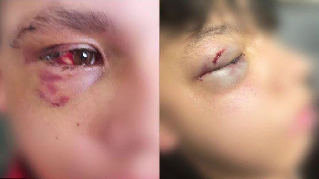 Las pandillas de menores violentos siembran el pánico en barrios de Madrid