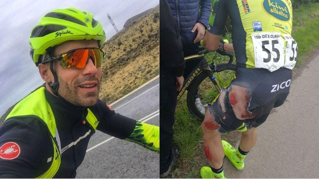 """""""Ya me quedan menos vidas"""": Un ciclista español, atropellado por un coche mientras entrenaba en Inglaterra"""