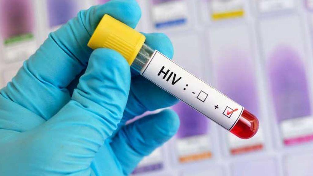 Logran frenar la transmisión del Sida con antirretrovirales