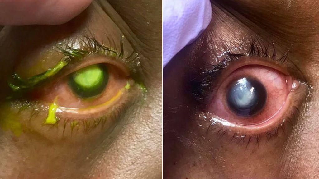 Un doctor muestra los peligros de dormir con las lentillas puestas