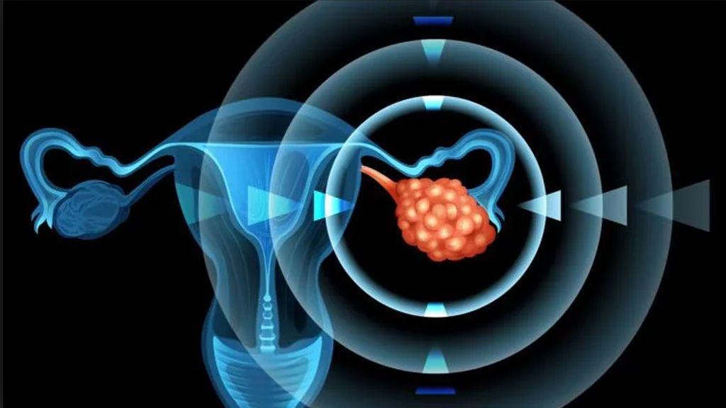 El cáncer de ovario,  el 70% de los diagnósticos se hace cuando ya está muy avanzado
