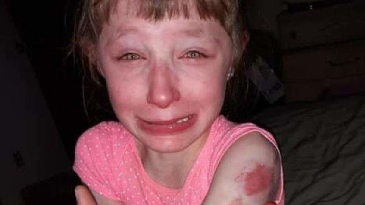 Una niña muerde a otra de diez años con discapacidad en un autobús escolar en Wisconsin