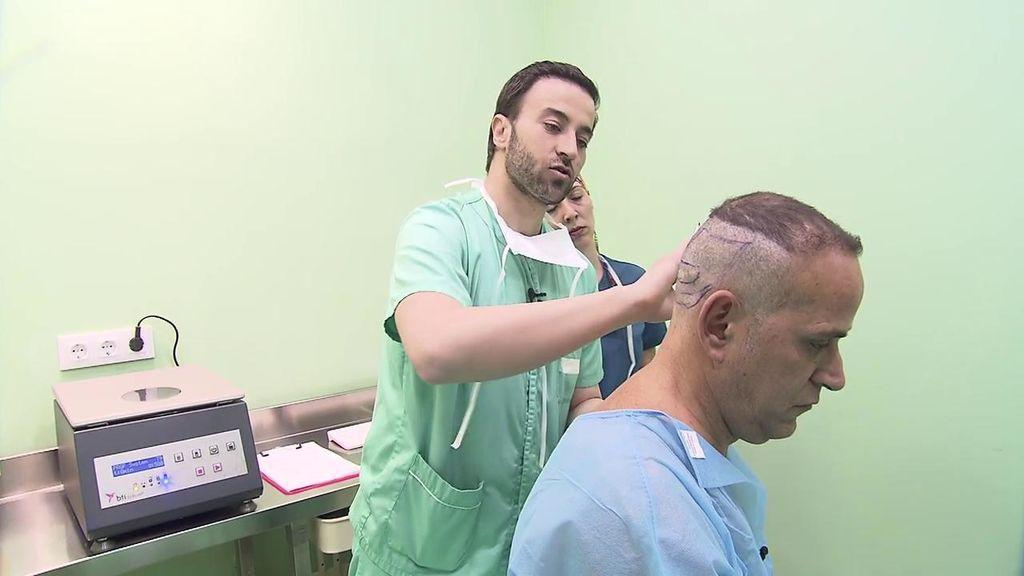El injerto capilar de Aurelio Manzano: le acompañamos hasta el quirófano