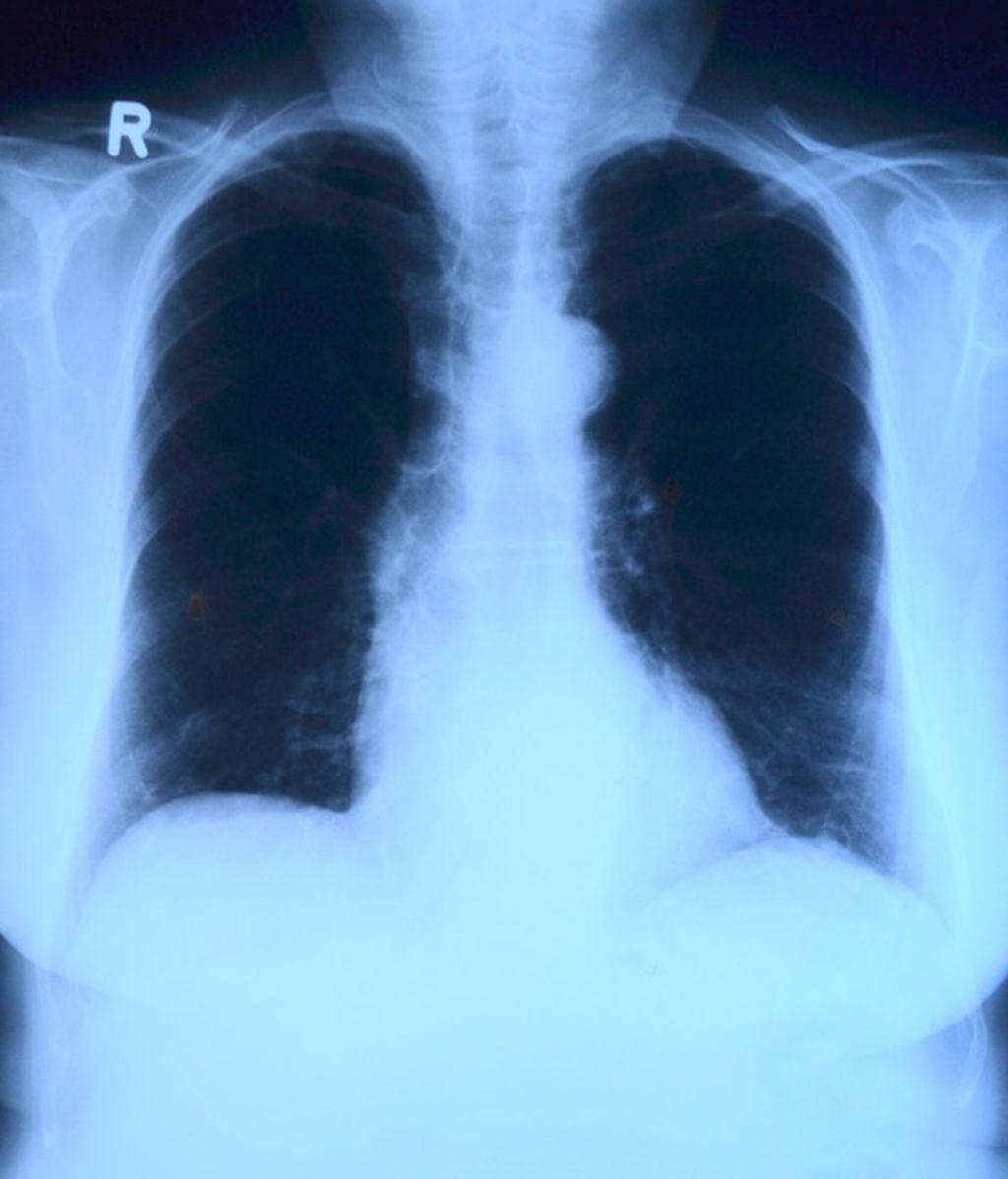 Un programa de Google es capaz de identificar más casos de cáncer de pulmón que las propias pruebas