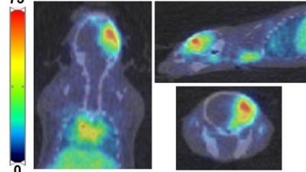 Descubren una técnica que facilita la llegada al cerebro de fármacos contra al cáncer