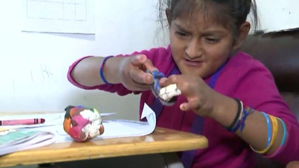 El día a día de Yarina: con 9 años, no sabe lo que es el dolor ni el frío ni el calor