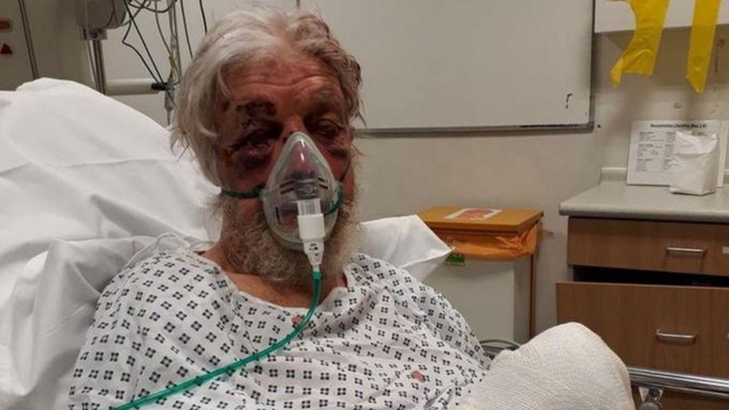 Herido un hombre de 80 años tras ser atacado en Londres