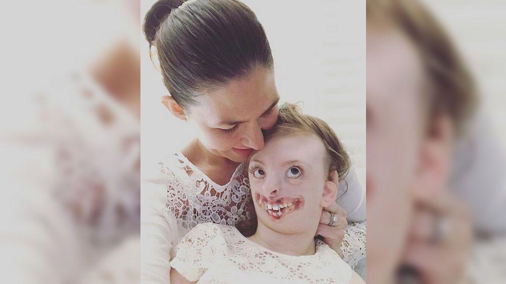 Muere a los 10 años Sophie Weaber, símbolo de la lucha contra la discriminación de los niños con deformidades