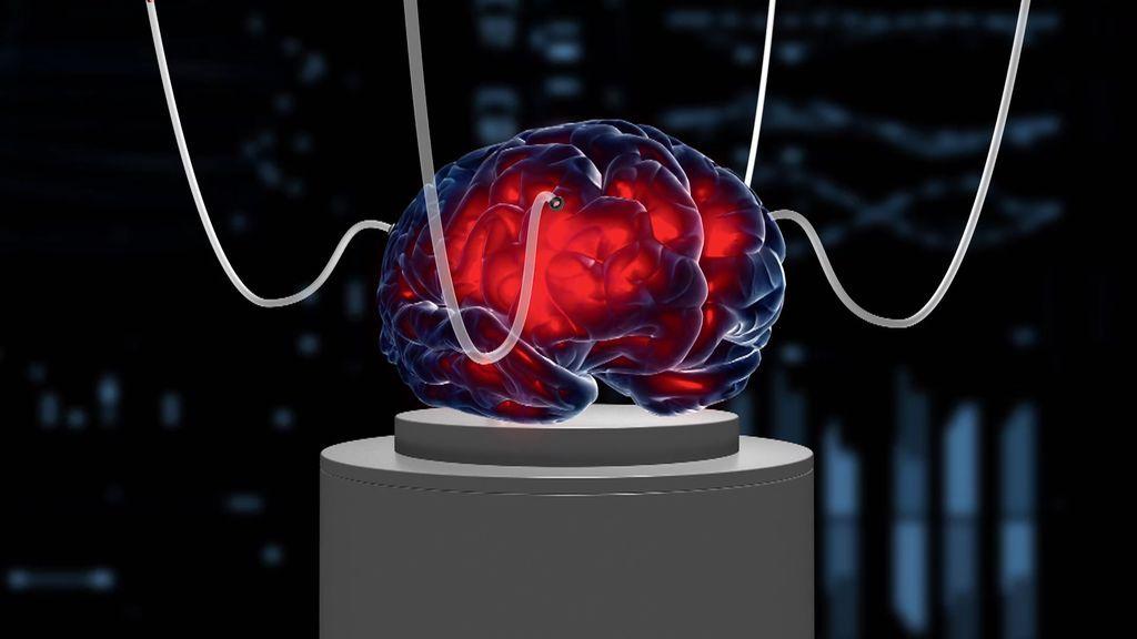 Un equipo de investigadores consigue restablecer la actividad cerebral horas después de la muerte