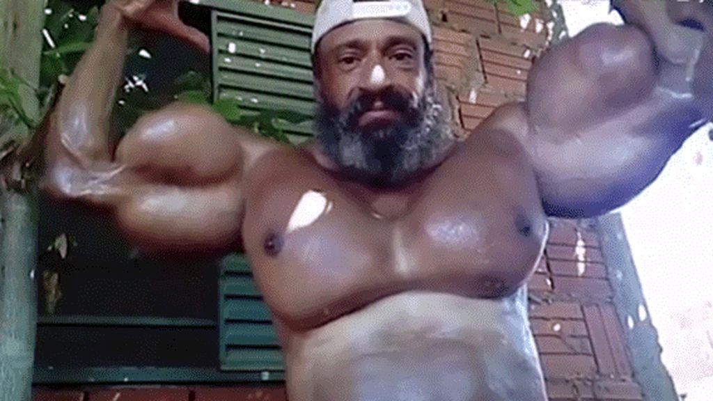 El extravagante aspecto del 'Hulk brasileño': se inyecta aceite para inflar sus músculos