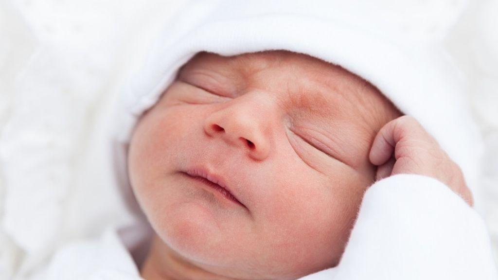 Hemangioma infantil, uno de los tumores benignos más comunes entre menores