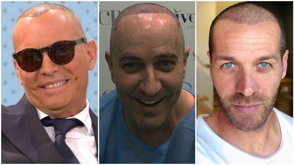 El injerto capilar conquista a los rostros de Telecinco: Hablamos con especialistas