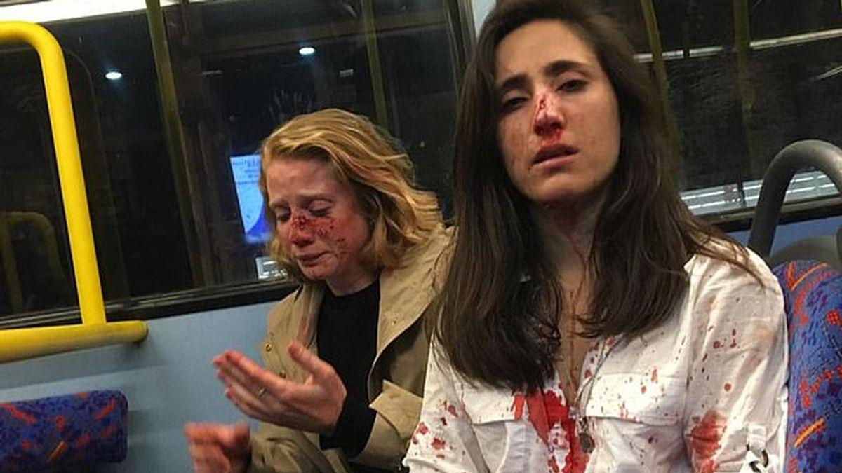 Brutal paliza en Londres a una pareja de lesbianas por no besarse en público