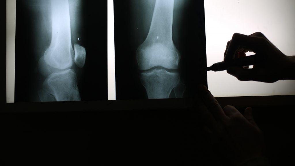 Alertan de la aparición de fracturas vertebrales tras suspender un tratamiento contra la osteoporosis