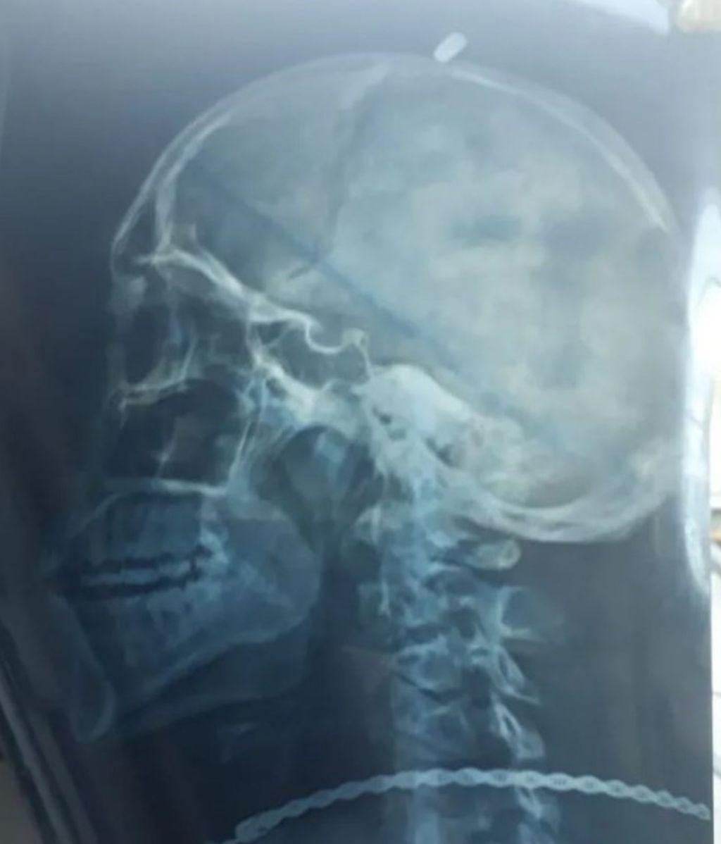 Acude al médico por unos fuertes dolores de cabeza y le encuentran una bala