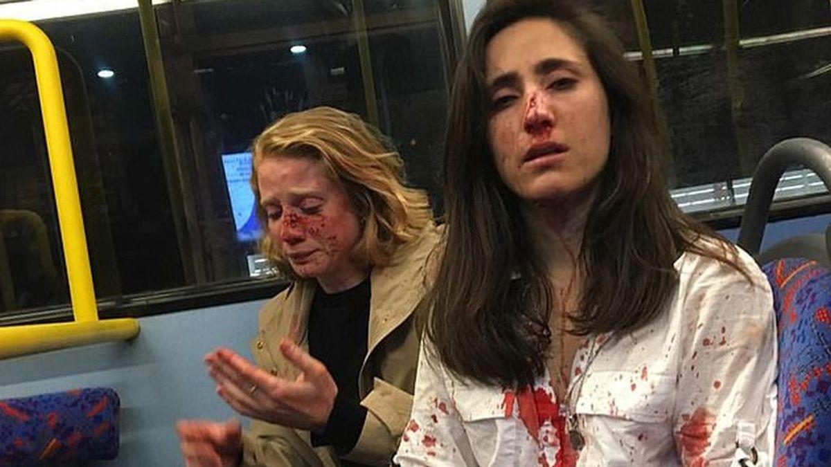 Libertad bajo fianza para los cinco sospechosos del ataque homófobo a una pareja en Londres