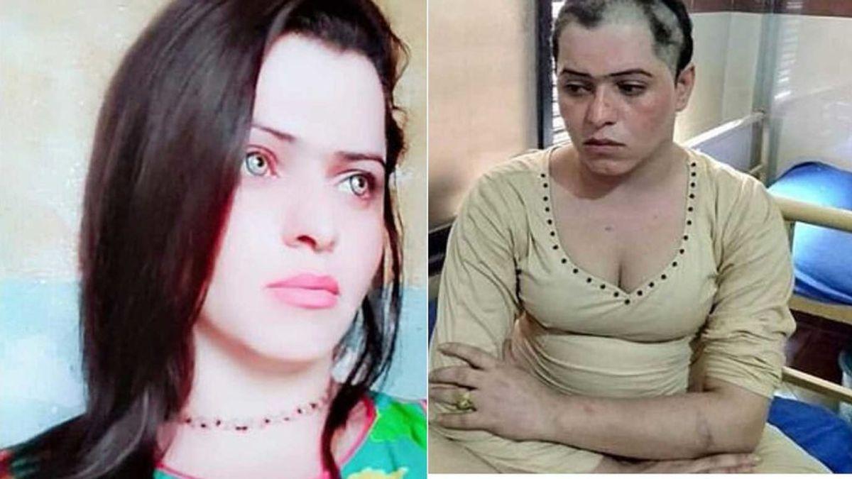Secuestran, pegan y rapan la cabeza a una mujer transgénero
