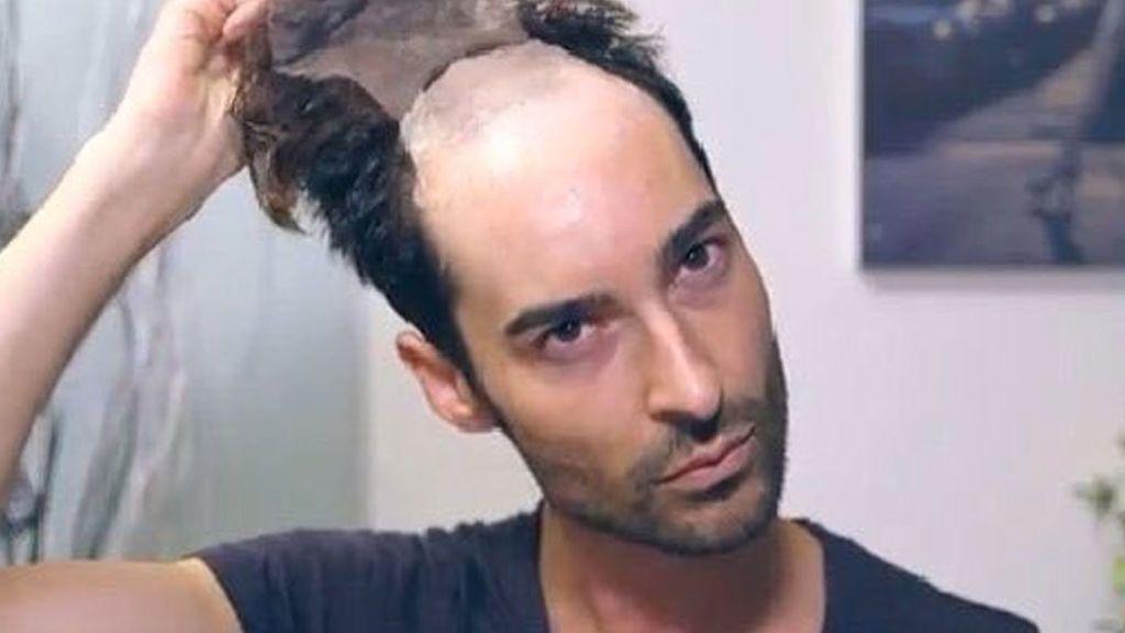 Miguel Vilas 'GH' luce pelazo un año después de hacerse un injerto capilar