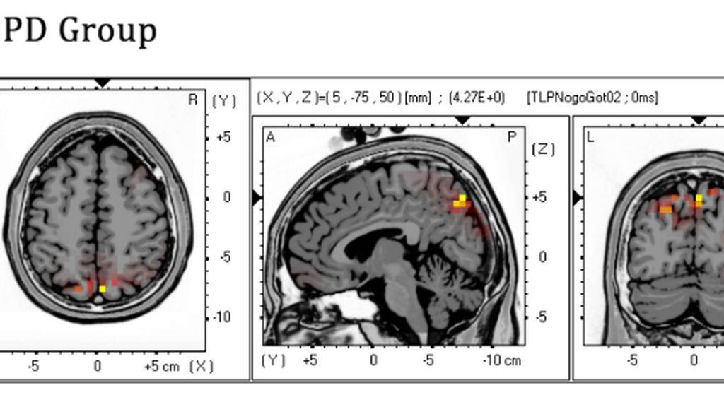 Las personas con trastorno límite de la personalidad activan regiones cerebrales distintas para controlar sus impulsos