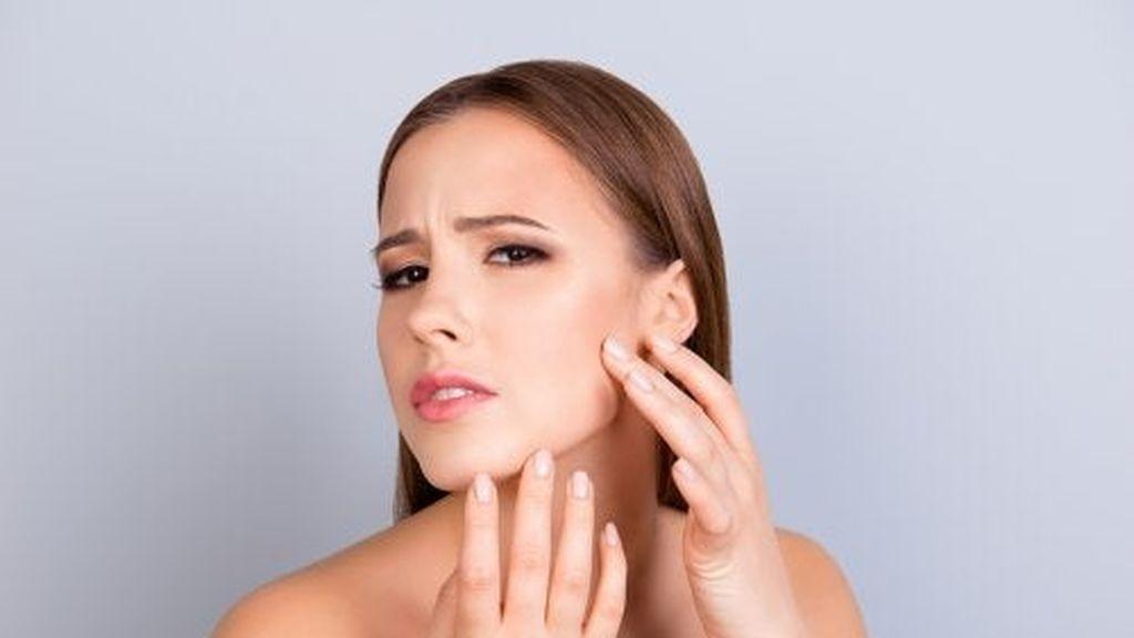 consejos-para-atenuar-las-cicatrices-del-acne-500x334