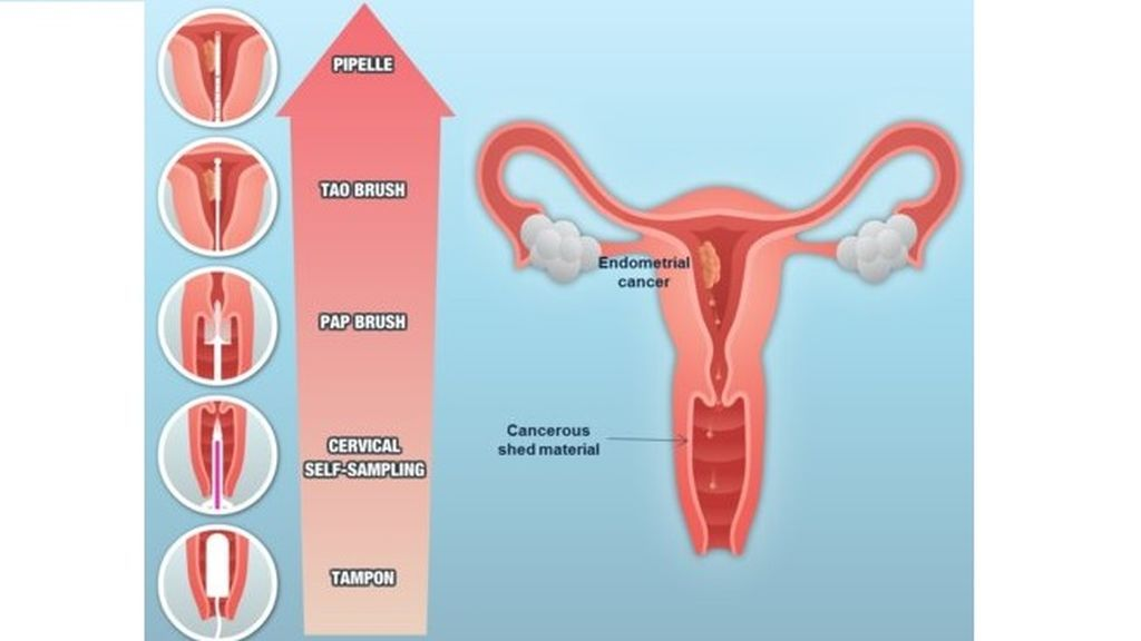 Prevención del cáncer de endometrio: Un estudio propone un análisis molecular para una mejor detección