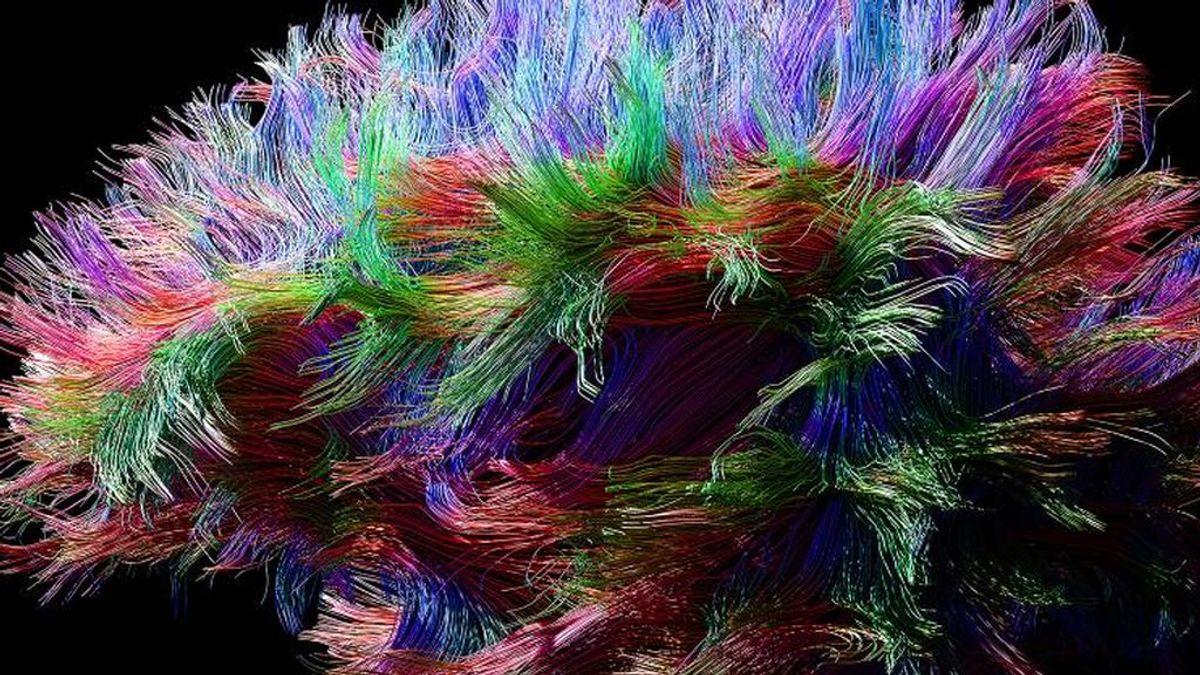 """Las """"vitaminas"""" para el cerebro son un timo"""