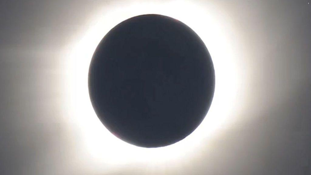 La visualización de un eclipse solar quema ambas retinas oculares de una ciudadana chilena