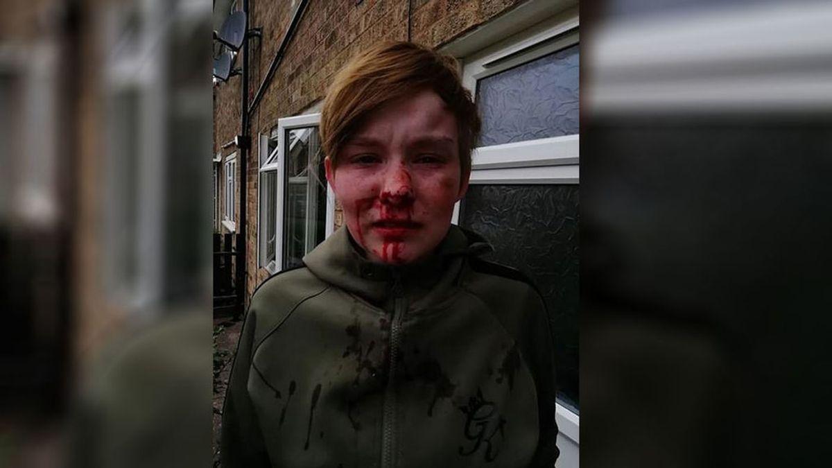 Un nuevo ataque homófobo en Inglaterra deja a una joven con la cara ensangrentada
