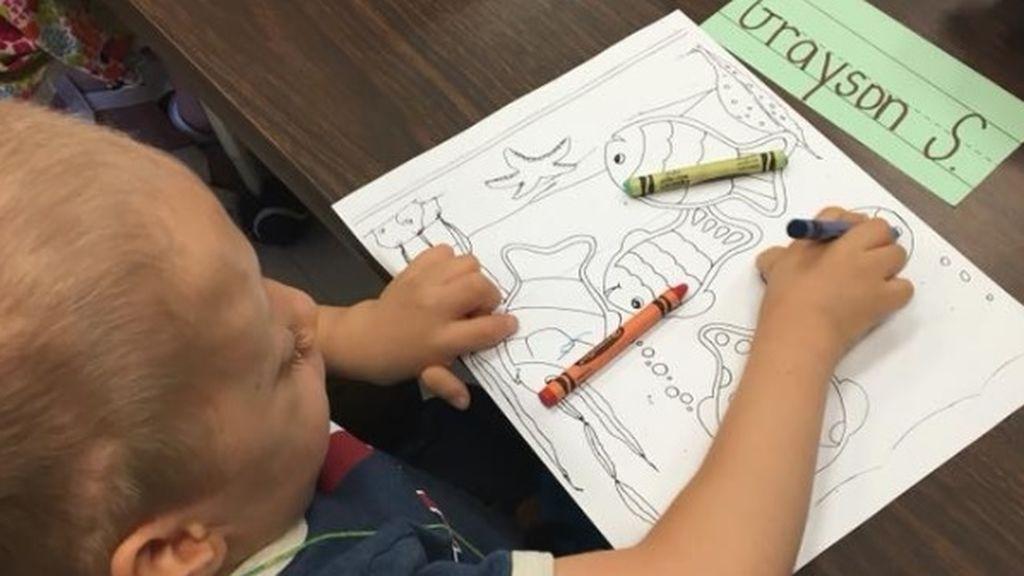 Con solo 6 años, el pequeño Grayson da nombre a un síndrome único en el mundo