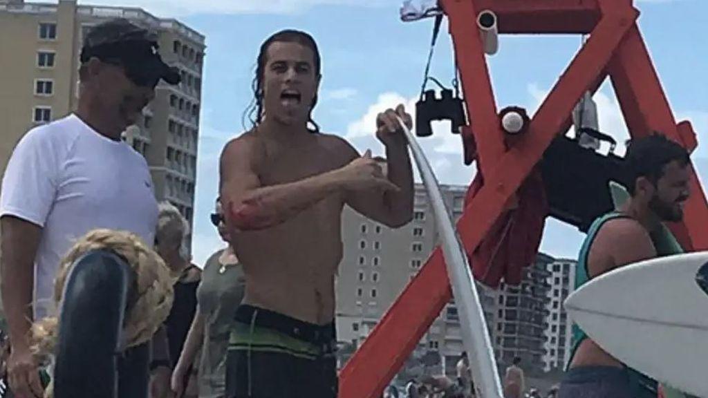 Le ataca un tiburón en el brazo y corre al bar para contárselo a sus amigos en vez de ir al hospital