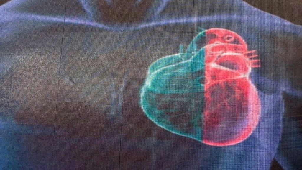 Desarrollan la impresión en 3D de partes funcionales del corazón humano