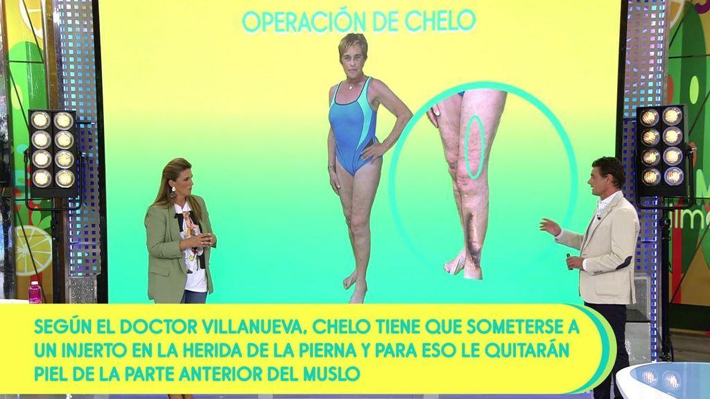 El doctor Villanueva da algunos detalles de la operación de Chelo García Cortés: Tendrá que hacerse un injerto de piel de la parte anterior del muslo