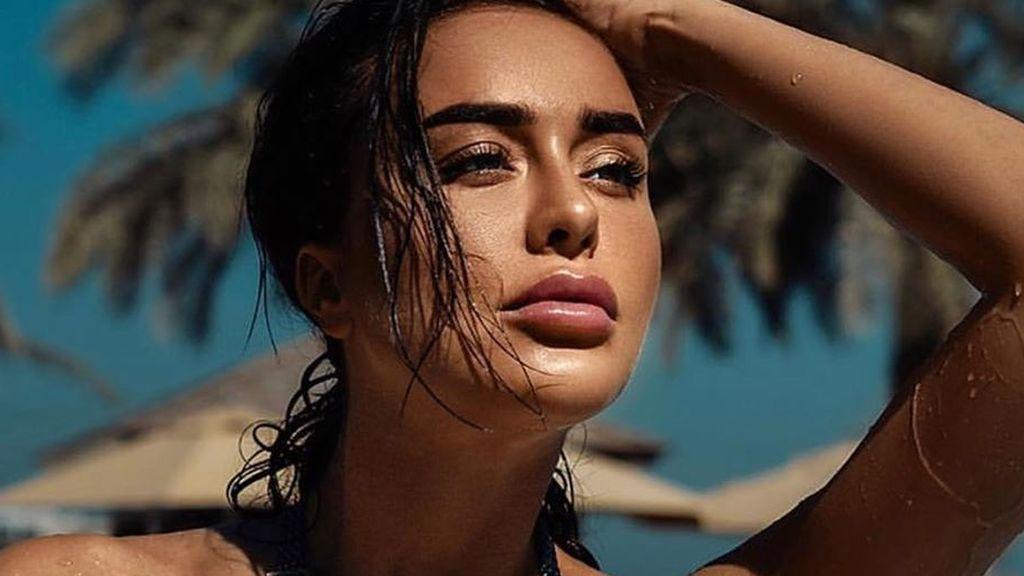 No lo hagas: una modelo muere por un remedio contra la resaca recomendado por Kim Kardashian