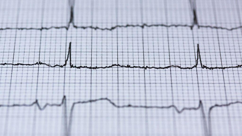 Descubren un biomarcador que predice con antelación el riesgo cardiovascular en personas sin síntomas