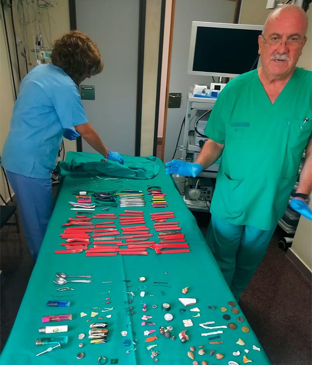 El doctor Casellas junto a objetos extraídos del estómago de sus pacientes