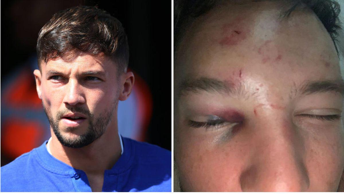 Seis matones propinan una paliza al jugador del Chelsea Drinkwater tras intentar acostarse con la novia de un rival