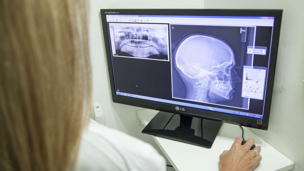 radiografias y radiación