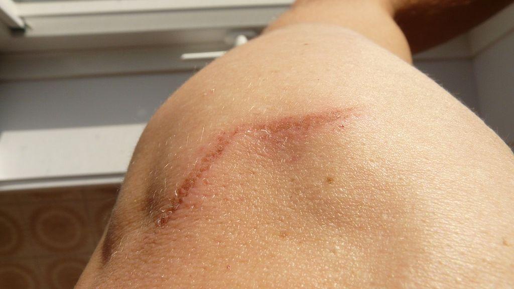 scar-58610_960_720